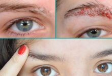 Why itchy eyebrows: causes and treatment